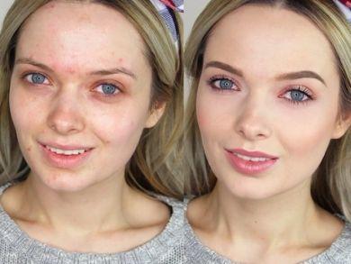 макияж трансформация для проблемной кожи