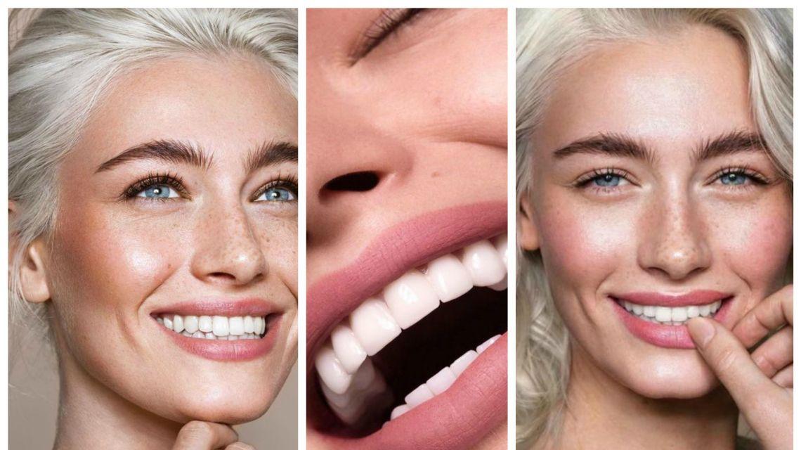 Секреты голливудских звезд: как добиться красивой улыбки