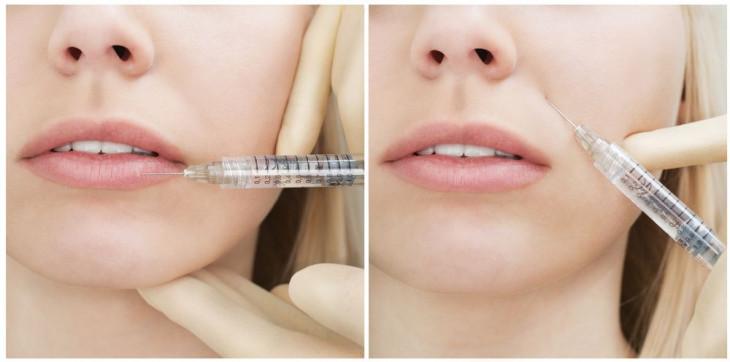 Гиалуроновая кислота инъекции в губы