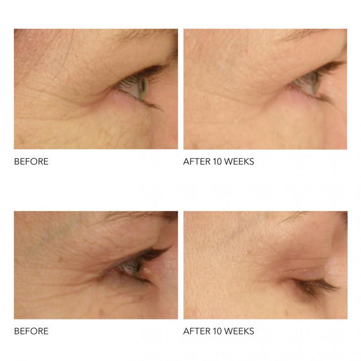 результаты после использования Spectra Lite Eye Care Pro