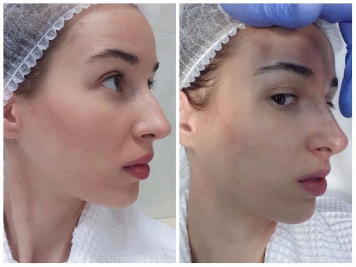 Ринопластика без операции до и после