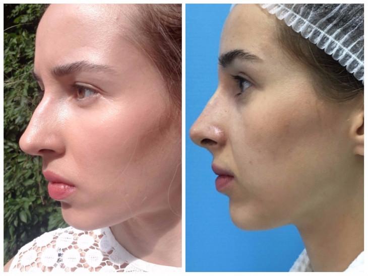 Контурная пластика носа: эффект после процедуры