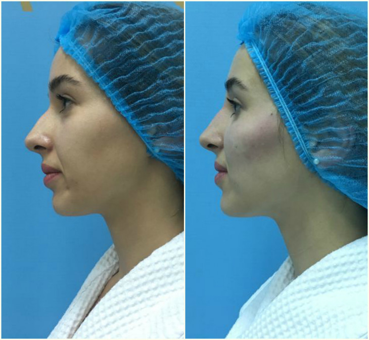 Скулы без операции До и После