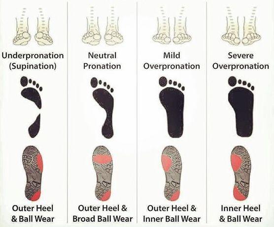 Типы свода стопы